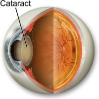 Ayurveda for cataract