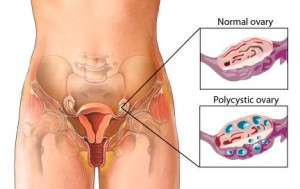 Polycystic ovary disease